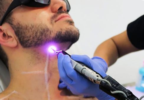 get rid razor bumps Laser hair removal
